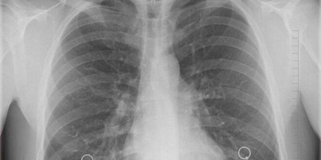 China descubre nuevas formas de ingreso de COVID-19 a los pulmones